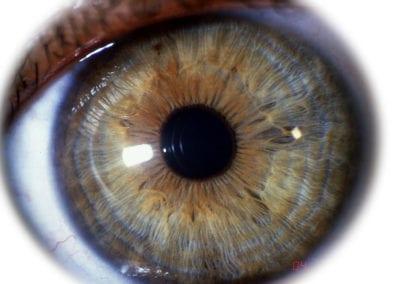 Blau-Braune Iris
